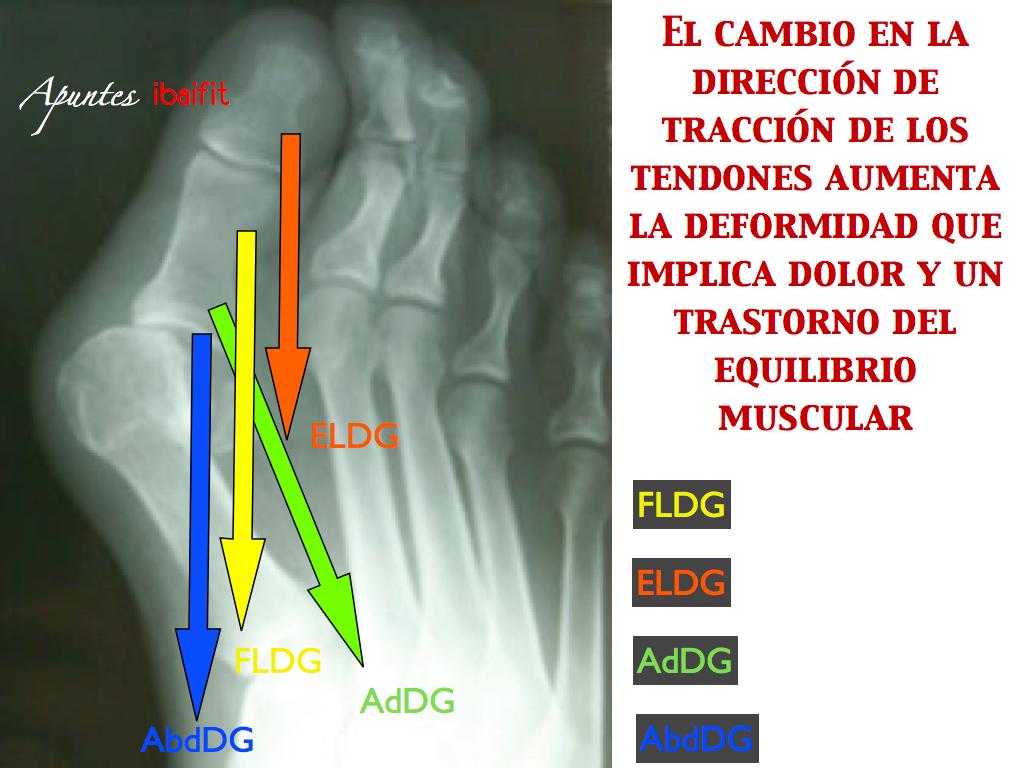 diapositiva.0061
