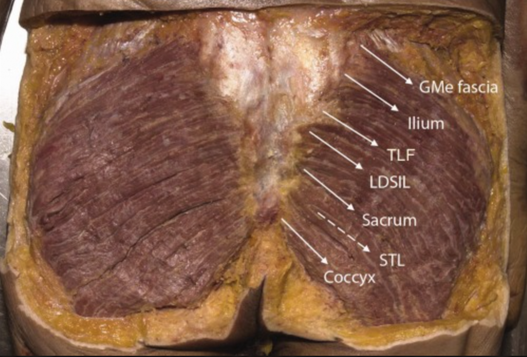 Fascicle angles of GMax attachments (white arrows= mean values). GMed = Gluteus medius, TLF = Posterior layer of lumbar fascia (also to underlying erector spinae aponeurosis, ESA), LDSIL = Long dorsal sacroiliac ligament, STL = Sacrotuberous ligament).