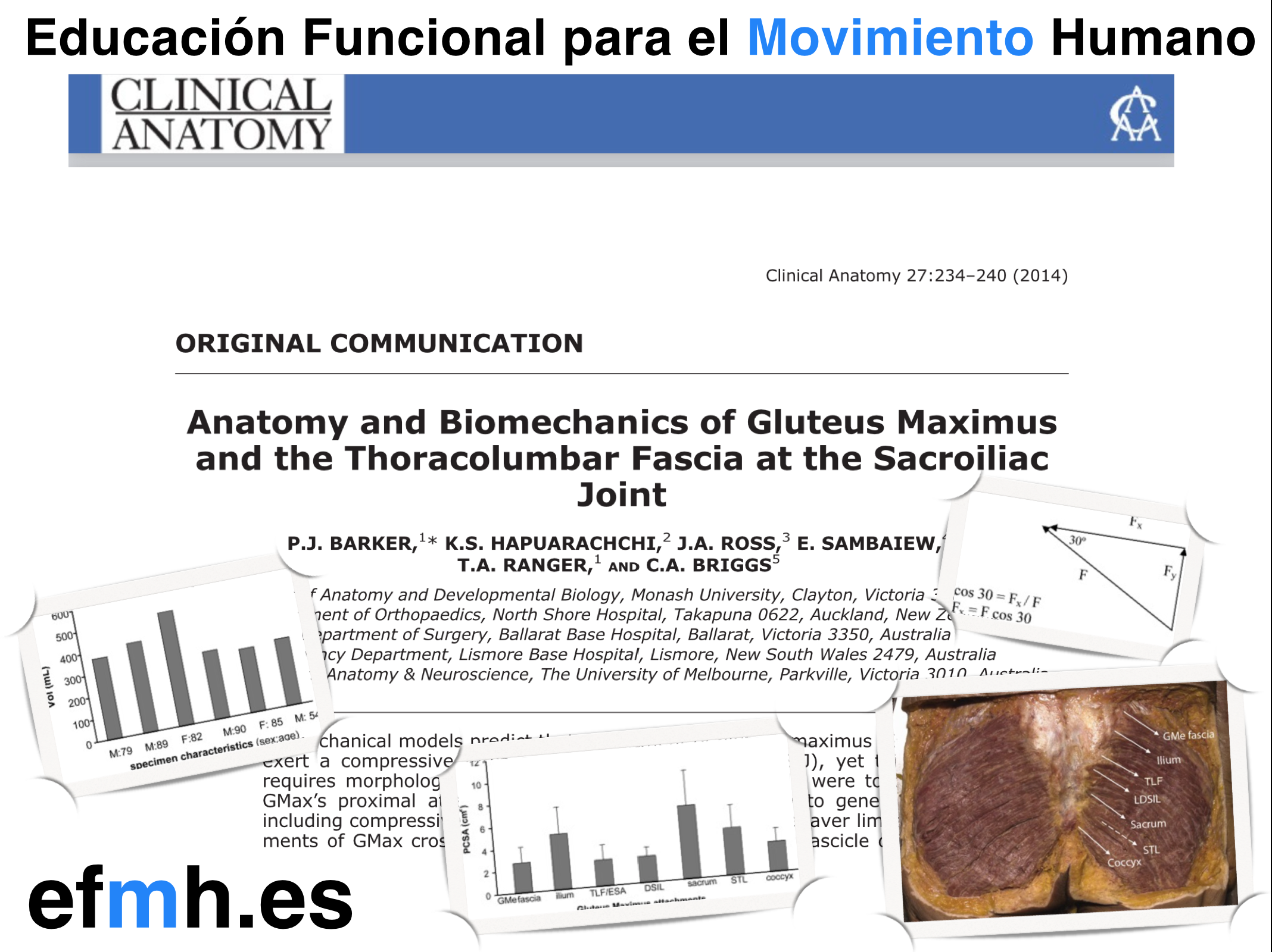 Anatomy and biomechanics of gluteus maximus and the thoracolumbar fascia at the sacroiliac joint. Barker