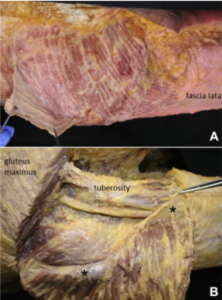 Posterior view of the left GMax and its fascia. In A: the deep fascia is adherent to the superficial surface of the GMax muscle thanks to the presence of many inter muscular septa (...). In B: the GMax was cut and reflected distally and laterally. It is evident that there is a deep fascia (highlighted with an asterix) that is adherent to the inner surface of the GMax. This fascia creates a plane of gliding between the GMax and the underlying structures.