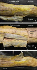 A: Anterior view of a right thigh (knee joint at right side) showing the myofascial origin of the vastus lateralis muscle from the inner surface of the fascia lata. B: Posterior view of a right thigh showing the myofascial origin of the biceps femoris muscle from the inner surface of the fascia lata. C: Medial view of the right thigh showing the continuity between the perimysium of the vastus medalis and the fascia lata. (http://dx.doi.org/10.1016/j.jbmt.2013.04.004)