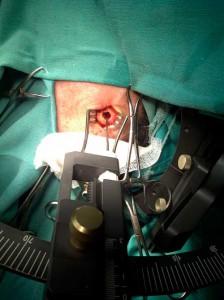 Biopsia-estereotactica